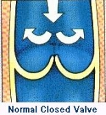 valve2_154x168
